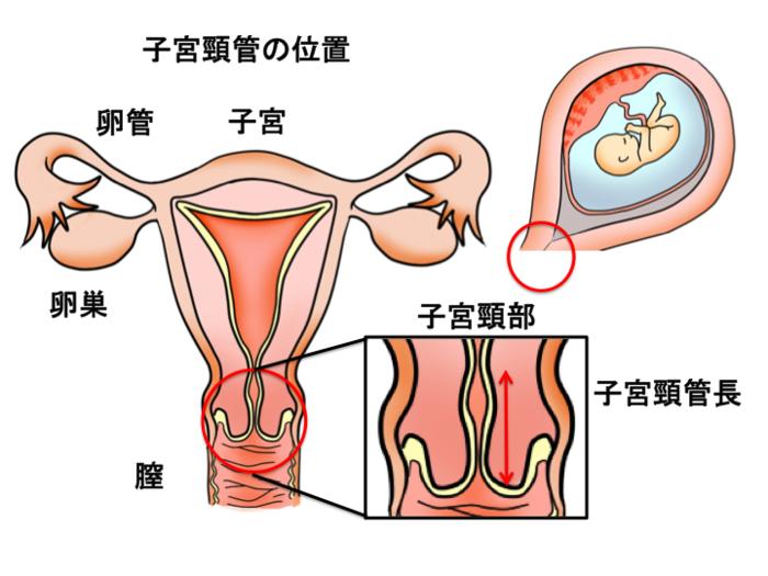 早産の原因にもなる子宮頸管無力症とその予防方法とは?の画像1