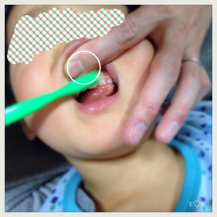 痛くない磨き方のポイントをおさえて、歯みがき嫌いを解消!の画像4