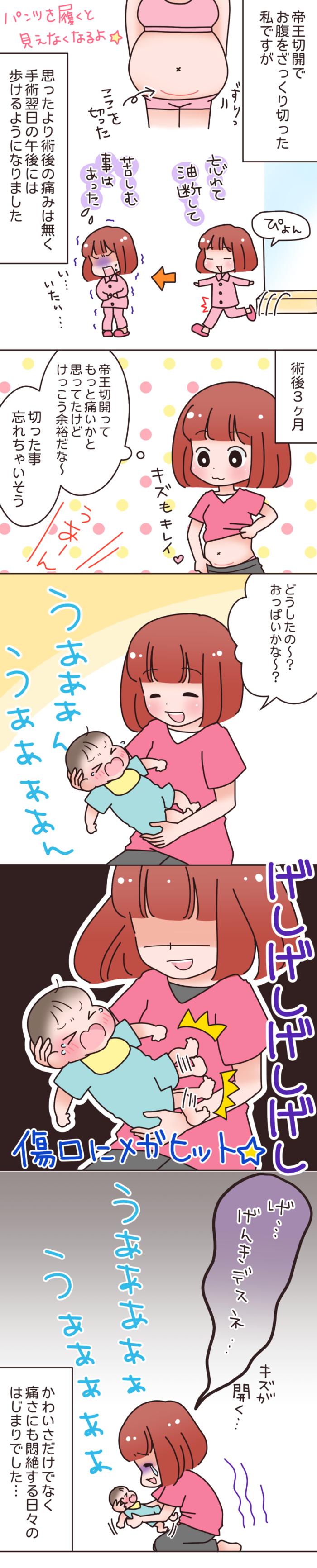 産後ママへの新たな試練!?帝王切開後は、○○にご用心の画像2