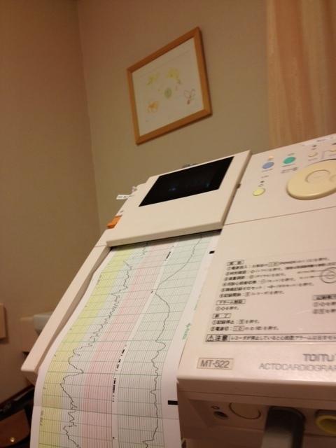 妊娠36週以降に妊婦健診で行う「ノンストレステスト」とは?のタイトル画像