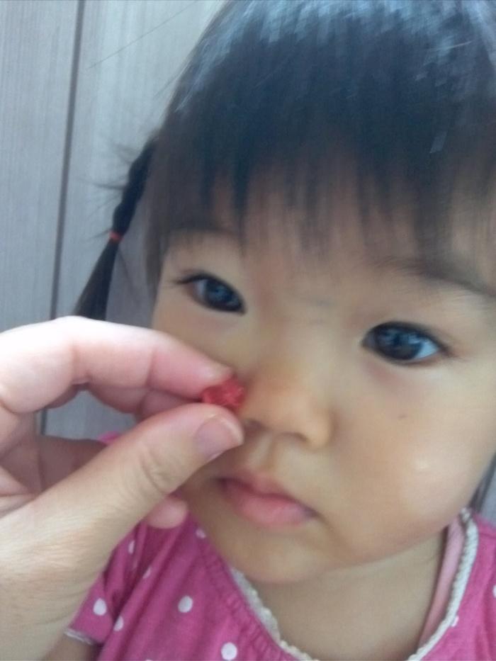 突然の娘の号泣とパパの叫び声に騒然・・・おもちゃが子どもの鼻の中に入ってしまって大騒動!の画像3
