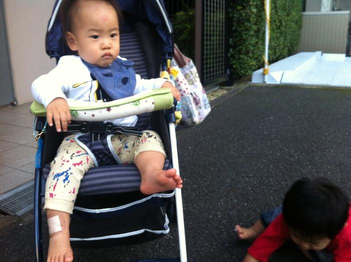 6ヶ月の息子が皮膚炎に…我が家の「ステロイド」との付き合い方とは?の画像2