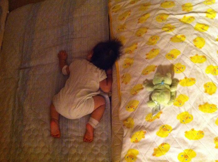 6ヶ月の息子が皮膚炎に…我が家の「ステロイド」との付き合い方とは?の画像3