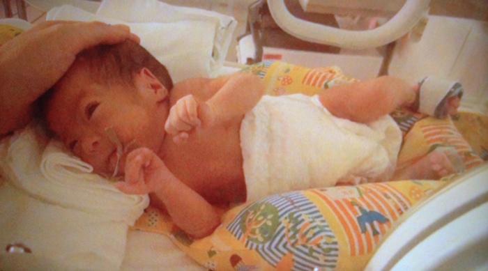 ◯◯のサイズアップが勲章!超低出生体重児の成長を感じる瞬間とは?の画像2