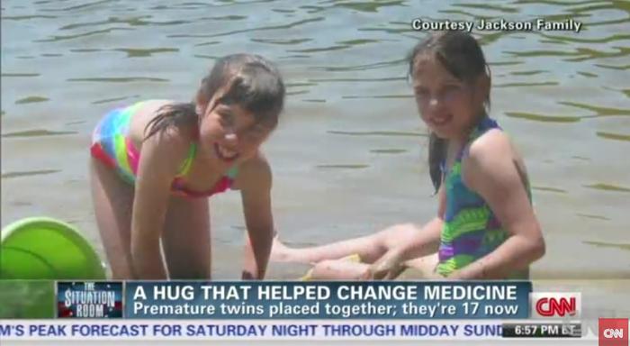 「命の抱擁」〜保育器の中で双子の姉妹が起こした奇跡と、気になるその後〜の画像3