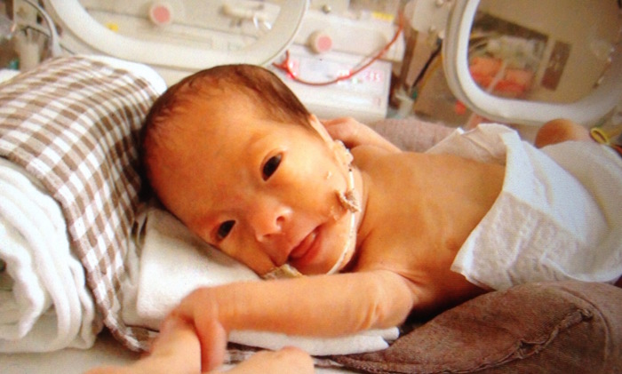 妊娠29週で超低出生体重児を出産...