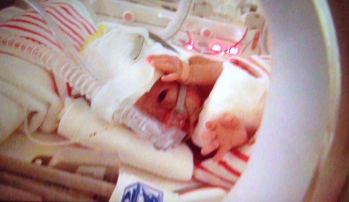 妊娠29週で超低出生体重児を出産!産後に嬉しかった言葉と心にひっかかった言葉の画像2