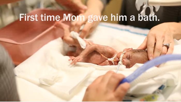 妊娠24週目で生まれた未熟児の赤ちゃん。パパママが撮り続けた1年の成長記録に思わず涙。の画像1