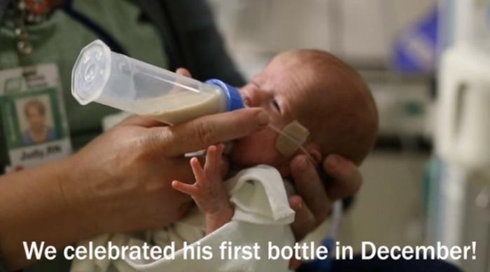 妊娠24週目で生まれた低出生体重児の赤ちゃん。パパママが撮り続けた1年の成長記録に思わず涙。の画像7