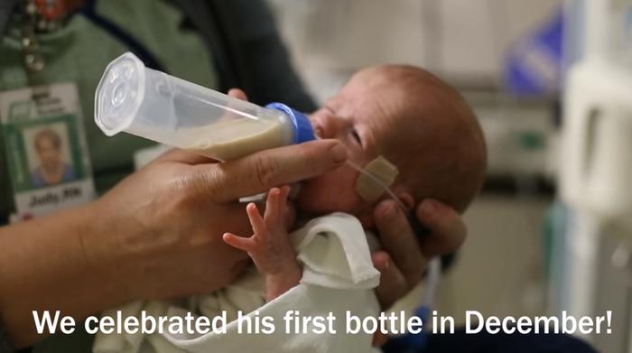 妊娠24週目で生まれた未熟児の赤ちゃん。パパママが撮り続けた1年の成長記録に思わず涙。の画像2