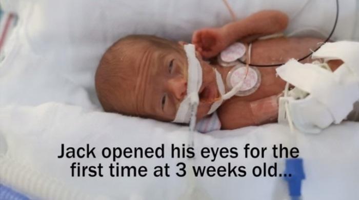 妊娠24週目で生まれた低出生体重児の赤ちゃん。パパママが撮り続けた1年の成長記録に思わず涙。の画像4