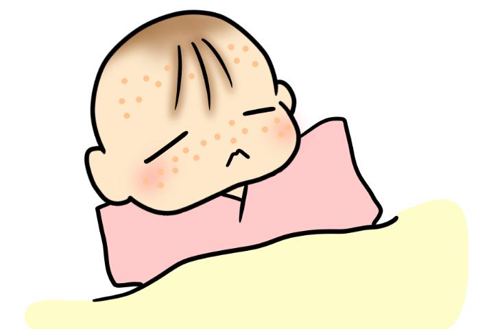 沐浴の仕方に石鹸、お米のとぎ汁…いろいろやってみたけれど。娘の乳児湿疹問題の画像2