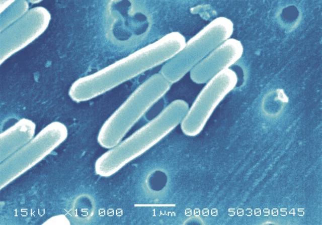 かゆみ・湿疹・赤み…心配な子どものアトピー性皮膚炎。8週間で改善が期待できる「○○乳酸菌」がスゴイの画像3