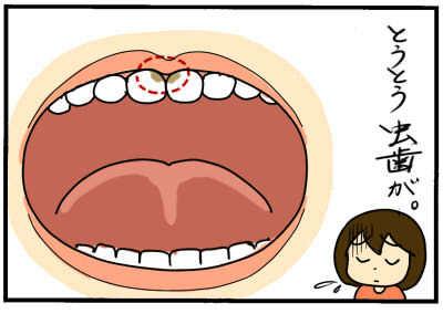 歯磨きを嫌がりすぎる次男、その意外な理由とは!?の画像3