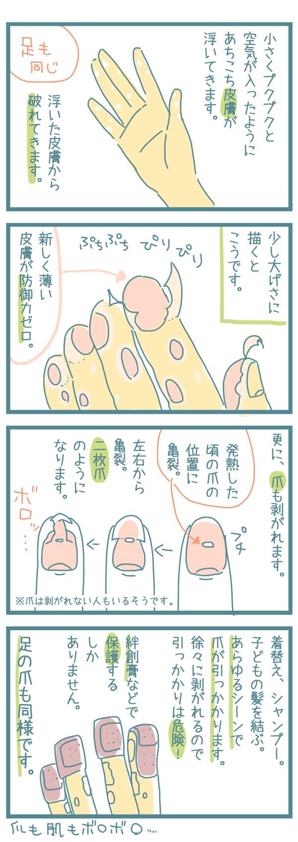 """家庭内感染が一番こわい!?手足口病は""""大人""""が気をつけるべき理由の画像11"""
