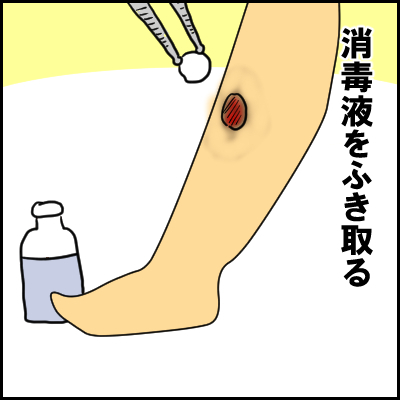単なる水いぼかと思ったら、高熱が出て入院!?夏の感染症にも気が抜けなかった!の画像12