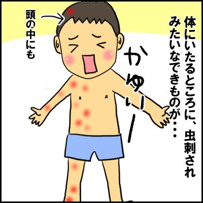 単なる水いぼかと思ったら、高熱が出て入院!?夏の感染症にも気が抜けなかった!の画像7