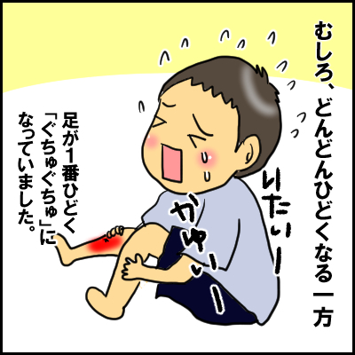 単なる水いぼかと思ったら、高熱が出て入院!?夏の感染症にも気が抜けなかった!の画像8