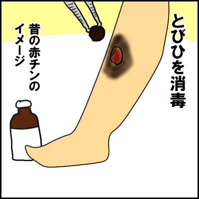 単なる水いぼかと思ったら、高熱が出て入院!?夏の感染症にも気が抜けなかった!の画像10