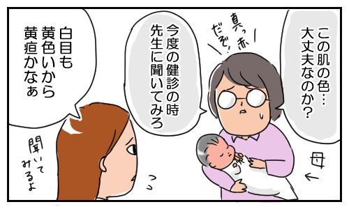 「新生児黄疸」による赤い肌を、気にしすぎる実母。その結果…の画像2
