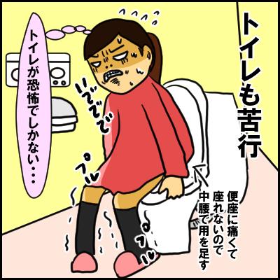 出産時こわかったもの…それは陣痛ではなく「痔」の痛みだった…!の画像8
