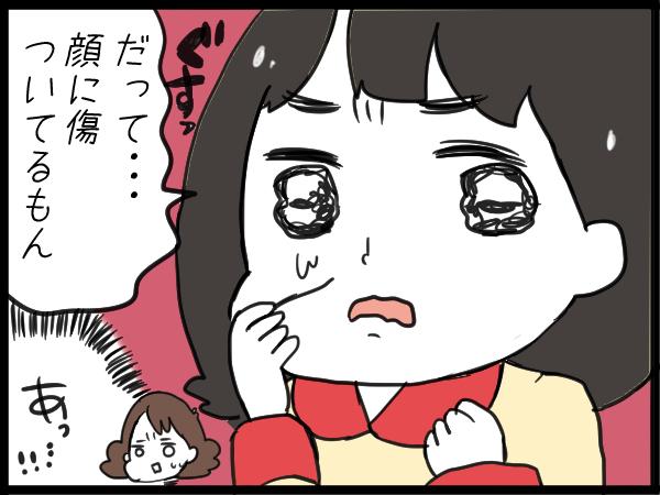 """姉弟ゲンカで娘の顔に傷が…。心配したママの""""声かけ""""で失敗してしまった話の画像7"""