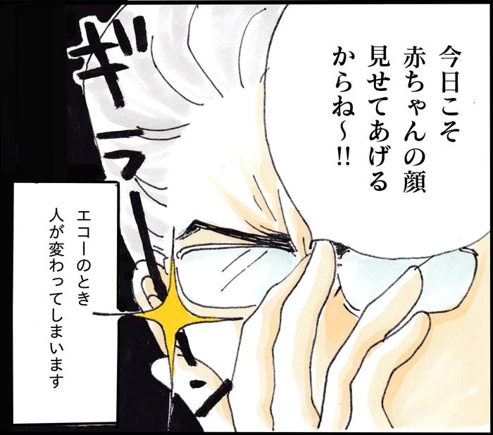 """優しい産科の担当医。でも…エコーの時だけこんなに""""人""""が変わる!(笑)の画像4"""