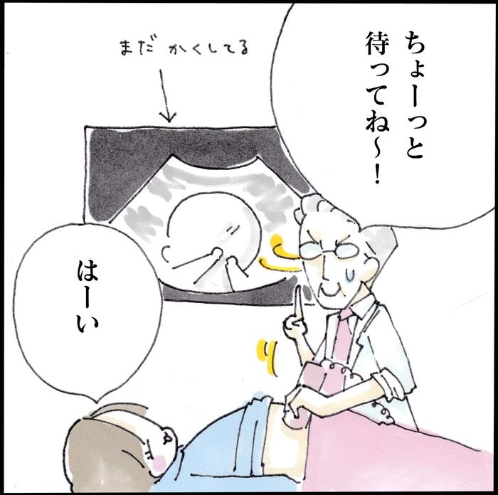 """優しい産科の担当医。でも…エコーの時だけこんなに""""人""""が変わる!(笑)の画像7"""